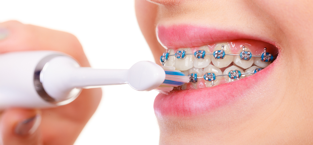 caring for braces 1