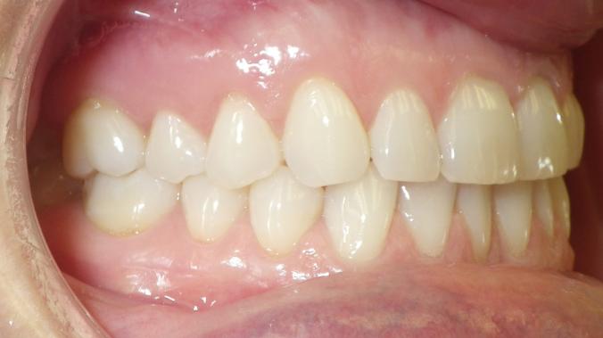 dental care img 4