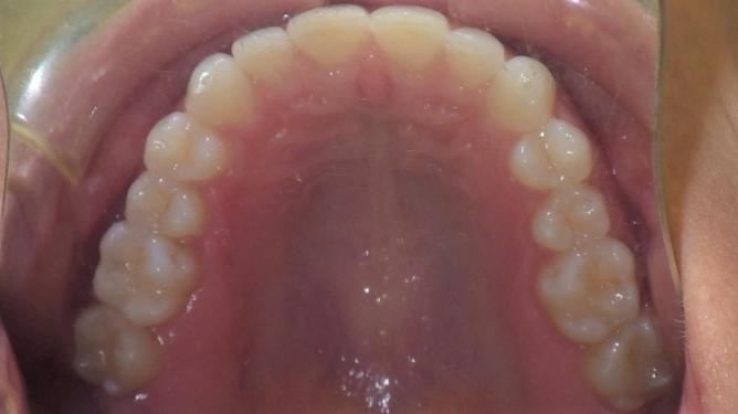 dental care img 5